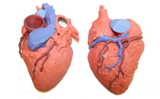 What Might Cause a Congenial Heart Defect (CHD)?