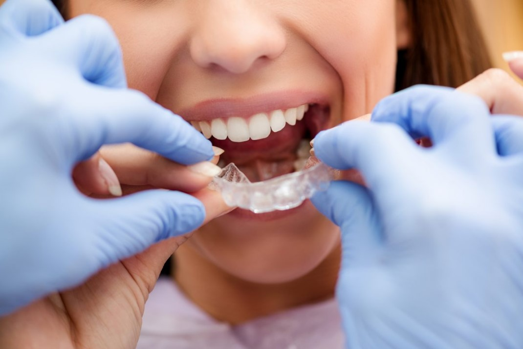 How to Choose Your Orthodontist